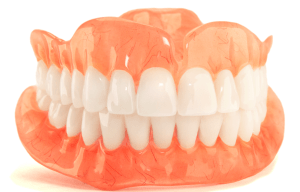 dental-and-tooth-implants-in-bangalore-perfect-smile-big-1